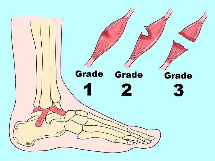Các mức độ lật cổ chân