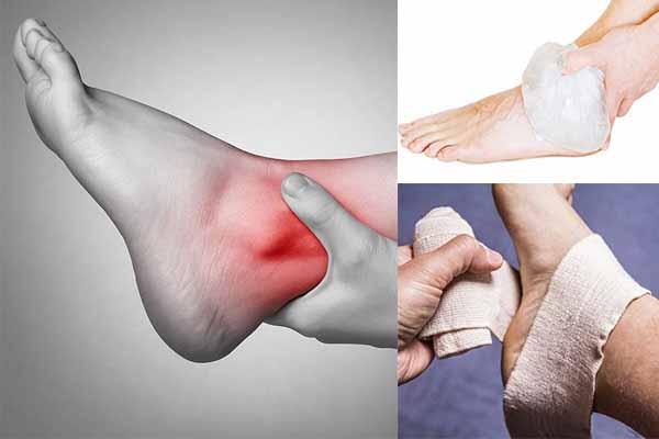 Cách điều trị và phòng tránh lật cổ chân khi chơi bóng rổ