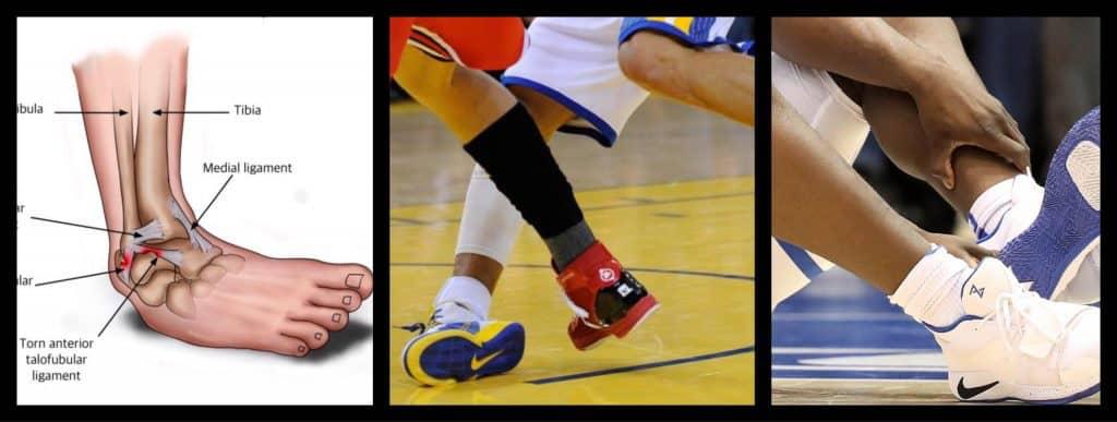 Chấn thương mắt cá chân khi chơi bóng rổ