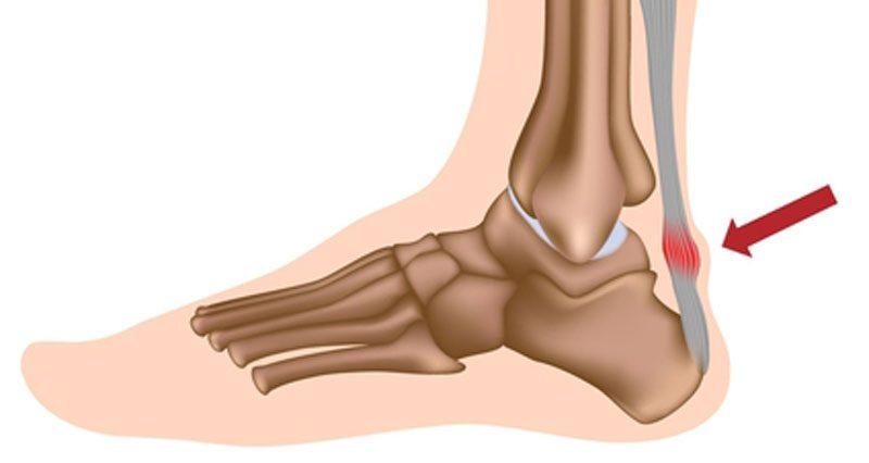 Tình trạng viêm gân Achilles (Achilles tendonitis)